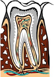 Root Canal Novato dentist