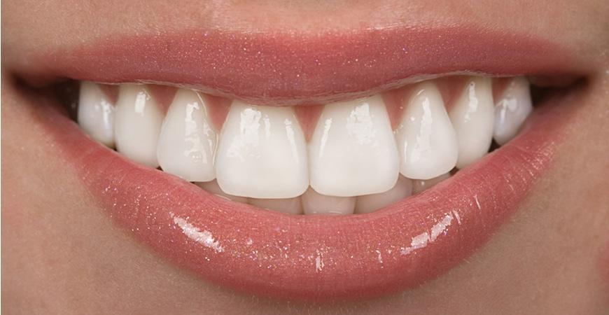 Dental Veneers Novato   San Marin Dental Care