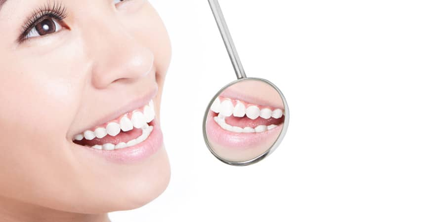 Teeth Whitening Novato | San Marin Dental